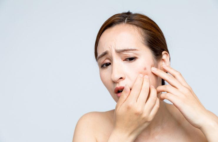 Clindamycin for Acne Dosage, Side Effects and More