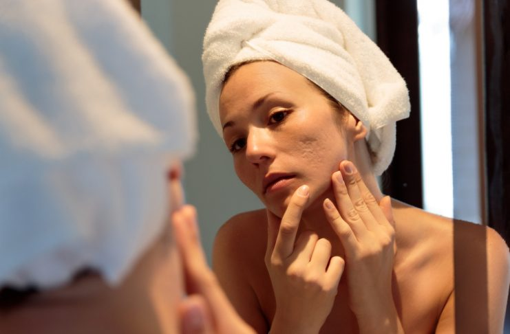 acne Types, Causes, Treatments, Tips and More